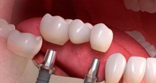 Имплантация зубов в Москвев 5